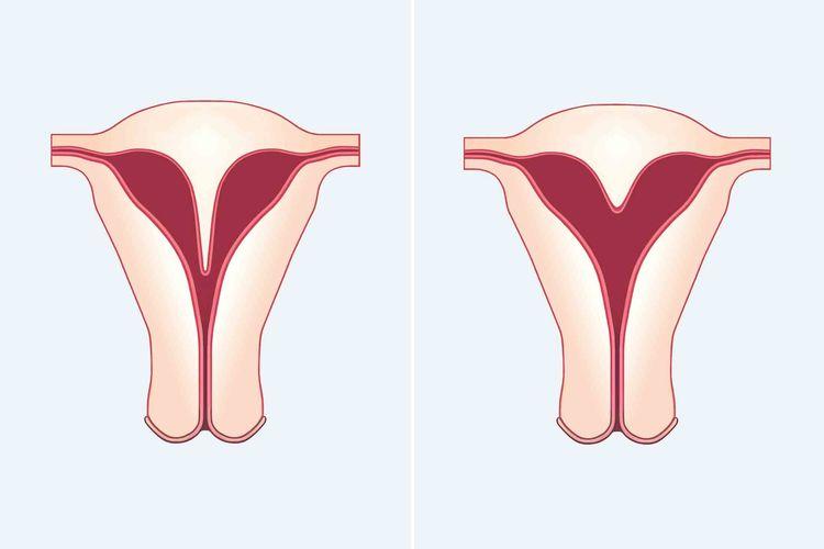 Herzförmige Gebärmutter